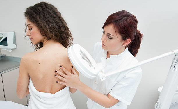 Skin cancer